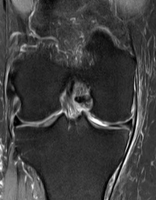 Abb. 2.4 Kniegelenksarthrose nach Behandlung
