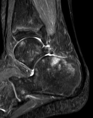Abb. 3.1 Fußwurzel Diagnose CRPS vor Behandlung
